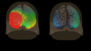 See your brain in 3D